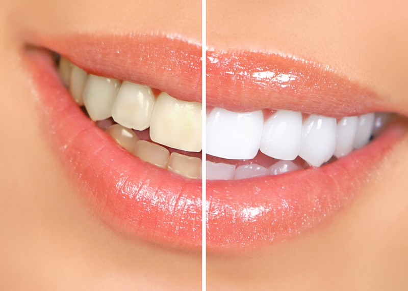 Teeth Whitening  Warren, OH -
